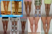 BISON. Исправление,  выпрямление и коррекция кривых ног.